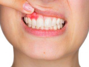 ¿Qué causa la enfermedad de las encías?