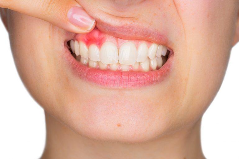 Causas de la Enfermedad de las Encías - Clínica Dental Vela Segalà