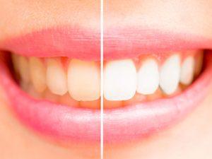 Motivos por los que hacerse un blanqueamiento dental