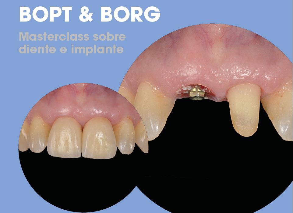Curso COEC Bopt - Borg