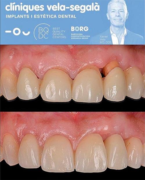 caso-clinico-coronas-dentales