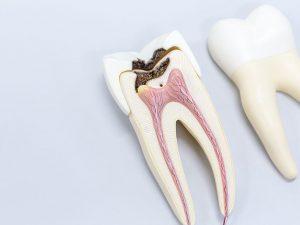 Intervención y resultados: ¿Cuánto dura una endodoncia?