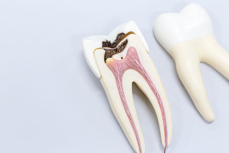 cuanto-dura-una-endodoncia