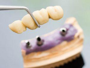 Dentadura postiza fija ¿Es una buena opción para mí?