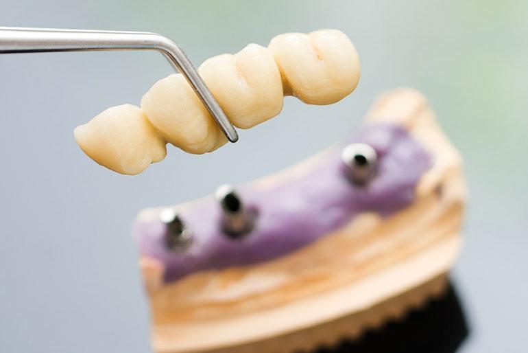 dentadura-postiza-fija