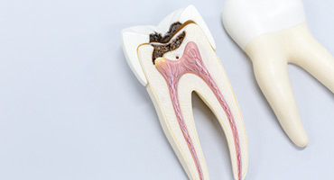 endodoncia barcelona