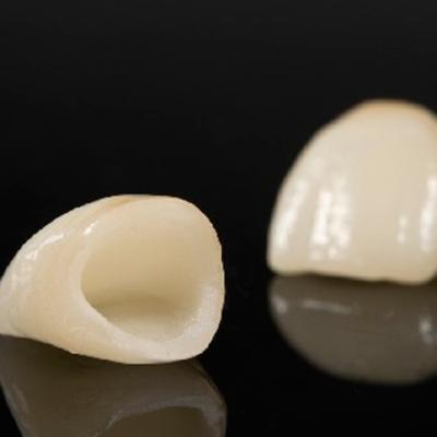 fundas-dentales