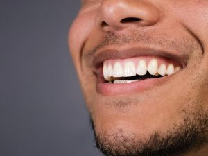 ¿Cómo corregir la sonrisa gingival?
