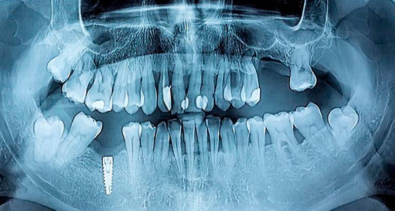 imlantes-dentales-barcelona