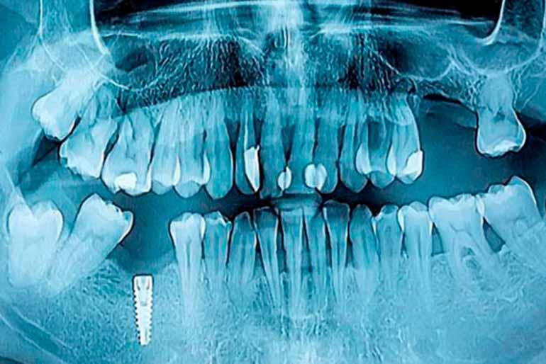 implantes-dentales-barcelona