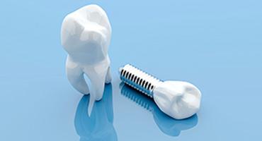 implantes dentales vela segala