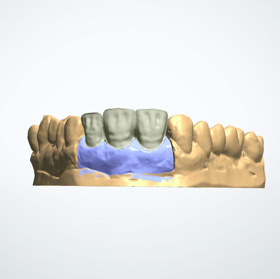 Planificación para implantes dentales