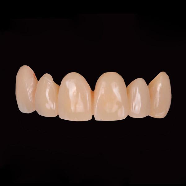 Prótesis para implantes dentales