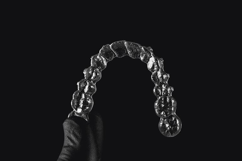 invisaling-ortodoncia-estetica