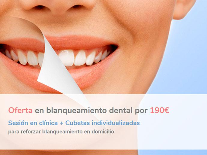 promocion-blanqueamiento-dental