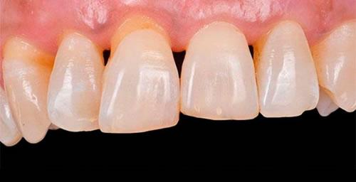 Restauración con cerámica en un paciente periodontal