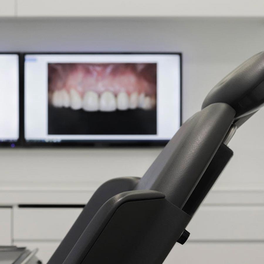 Resultado del tratamiento con implantes dentales